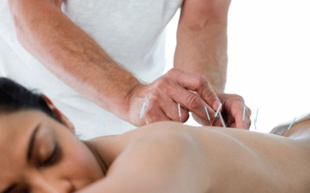 woman back acupuncture