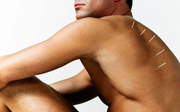 man shoulder acupunctured